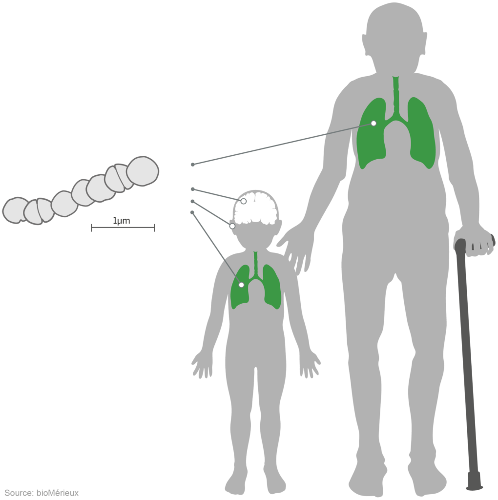 Pneumoniae infection caused by e coli